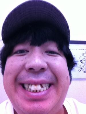 日村勇紀の歯の治療6