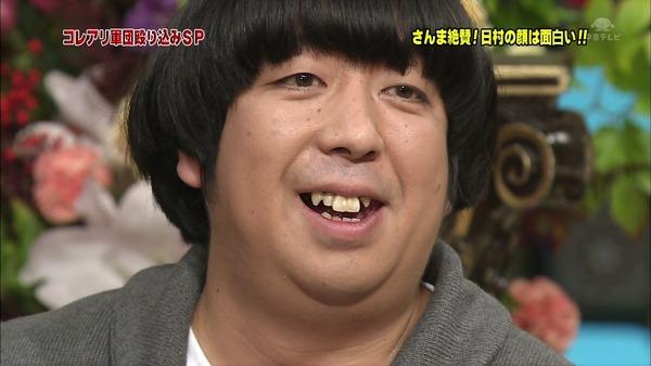 日村勇紀の歯の治療5