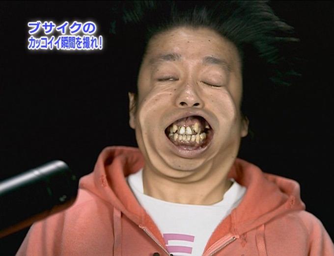 日村勇紀の歯の治療3