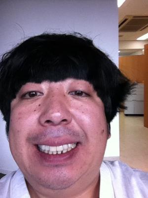 日村勇紀の歯の治療7