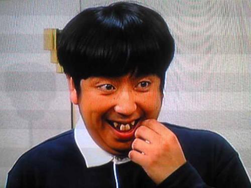 日村勇紀の歯の治療2