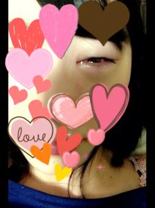 SKE48松井珠理奈の目の腫れ