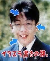 日村勇紀の歯の治療1