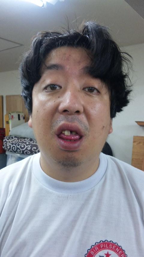 日村勇紀の歯の治療4
