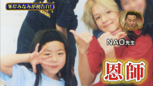 AKB48峯岸みなみ整形疑惑の画像1